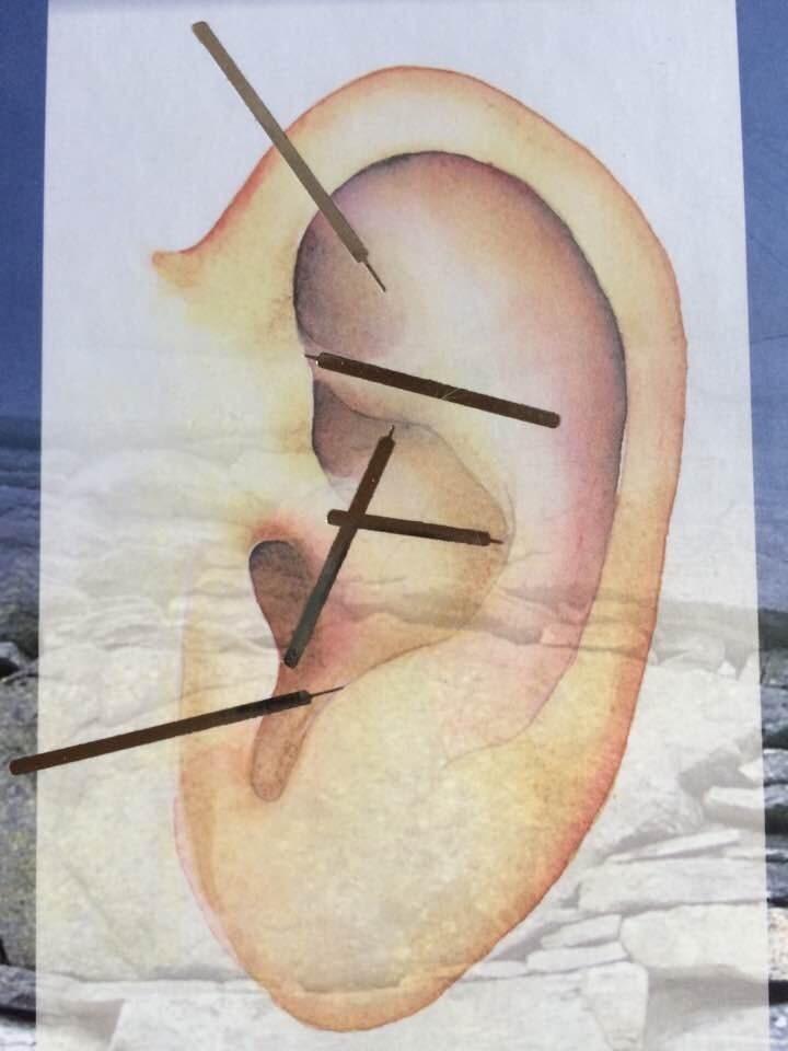 Nada, massage og akupunktur